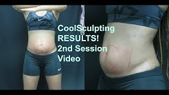 Coolsculpting Results! 2nd Session! Did it work?