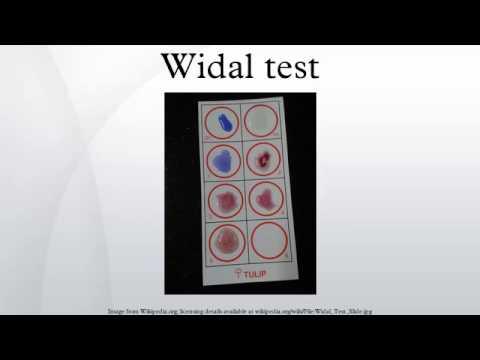 Widal Test Slide Amp Tube Procedure Doovi