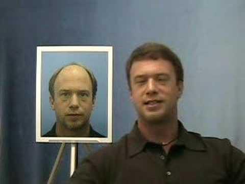 Hair Transplant Testimonial - Bobman - 1.800.859.2266