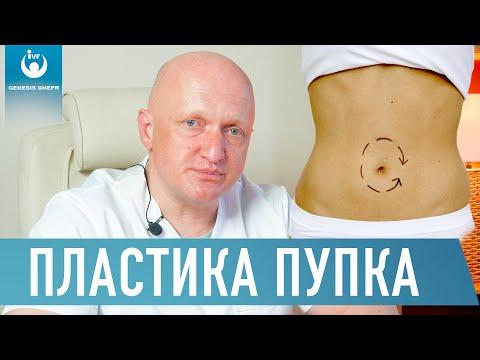 ПЛАСТИКА ПУПКА. умбиликопластика. Лечение лазером. Хирург высшей категории Щевцов А.Н.