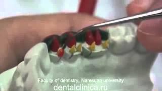 Протезирование Mandibular posterior teeth Лечение зубов в Клинике эстетической стоматологии(Клиника эстетической стоматологии European Clinic of Aesthetic Dentistry Eiffel Medical Center Dentist http://dentalclinica.ru и имплантации в Будап..., 2014-04-04T18:55:02.000Z)