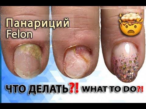 УЖАСНЫЙ МАНИКЮР😱ГНОЙНОЕ Воспаление Кутикулы после Маникюра. Испортили Ногти.Спасаем ногти. Урок гель