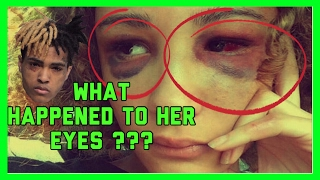 WHAT HAPPENED TO HER EYES ?? ( BASICALLY WHY XXXTENTACION IS LOCKED UP)