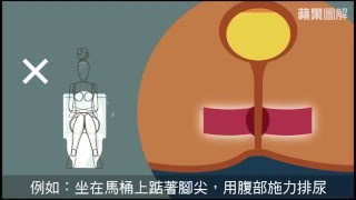 【圖解新聞】三種尿尿姿勢 恐害你尿失禁--蘋果日報20160502