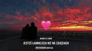Bedoes & Lanek - Jesteś ładniejsza niż na zdjęciach (ReCharged 'for Patrycja' Bootleg)
