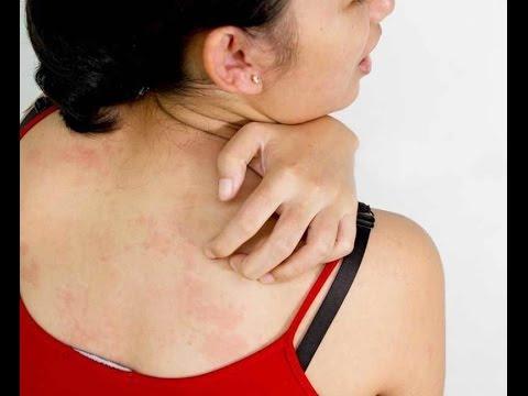 Лекарственная аллергия лечение, симптомы, препараты от