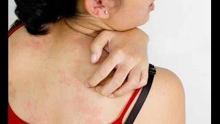 видео Аллергическая сыпь и высыпания на коже: как выглядит, симптомы и лечение
