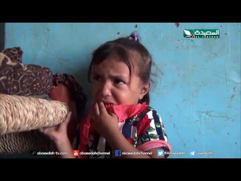 سنابل الخير - طفلة تعاني من ورم وكيس في الدماغ وشلل  14-10-2019م
