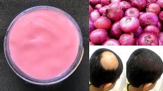 DIY Onion Hair Gel | Onion Gel For Hair Growth | Grow Hair Super Long & Strong | STOP Hair Fall