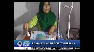 Download Video Bayi Bermata Satu di Sumatera Utara Akhirnya Meninggal Dunia MP3 3GP MP4