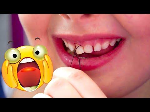 Дженни ВЫРВАЛА СЕБЕ ЗУБ САМА! БОЛЬНО?! Как удалить себе молочный зуб ниткой дома?! Лайк Влог