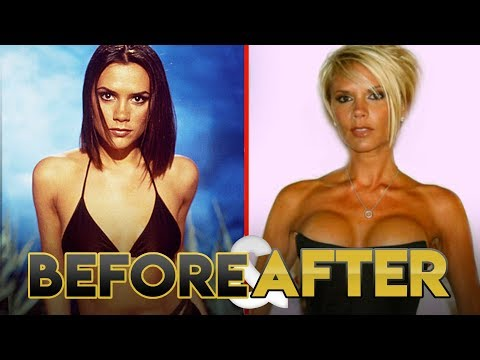 SPICE GIRLS | Before & After Transformations | Posh, Ginger, Scary, Sporty & Baby