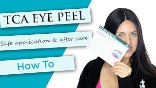 TCA Eye Peel Tutorial | Demonstration + After Care