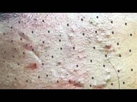 Satisfying Video Acne, Blackheads Removal Skin Care and Relaxing Sleep Music #261