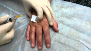 видео Разнгица между невралгией и остеохондрозом