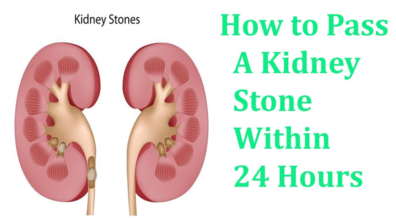 How To Pass A Kidney Stone Within 24 Hours Youtube