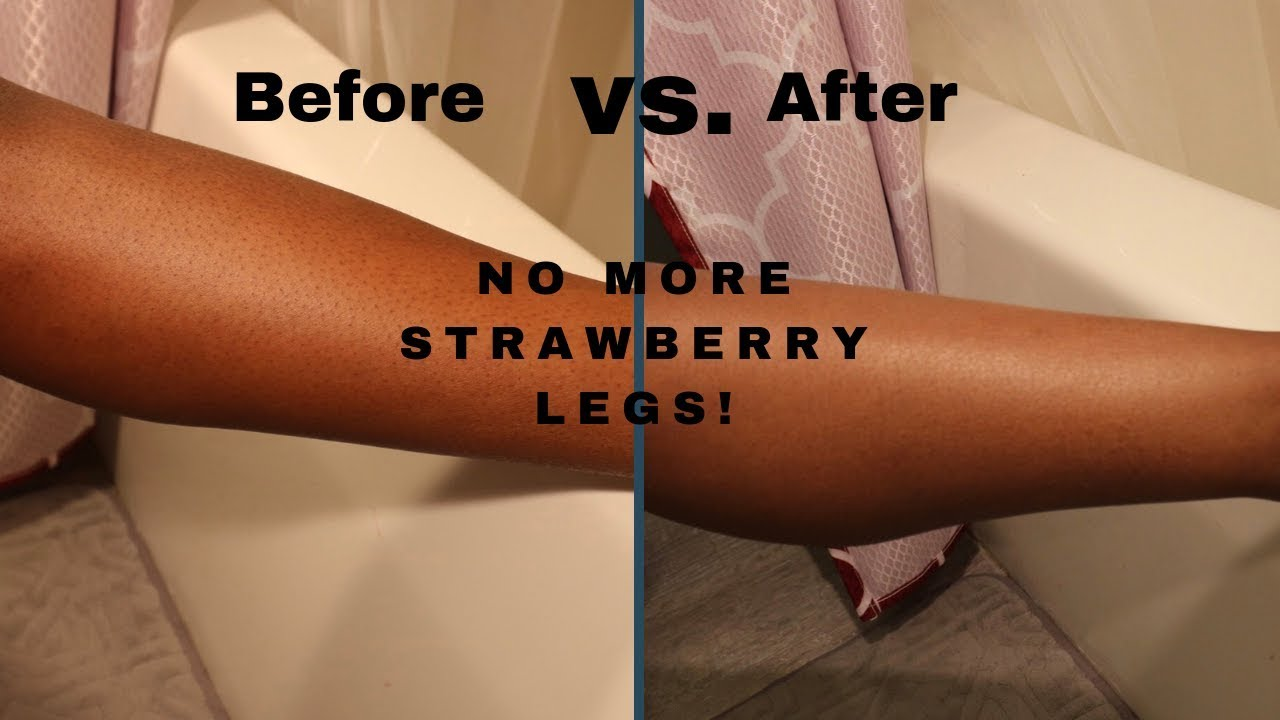 How To Get Rid Of Strawberry Skin Permanently Buy Now Link In