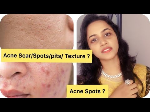 Skin care routine to get rid of Acne scar/spots/pits/texture/large pores, dull skin,Uneven skintone.