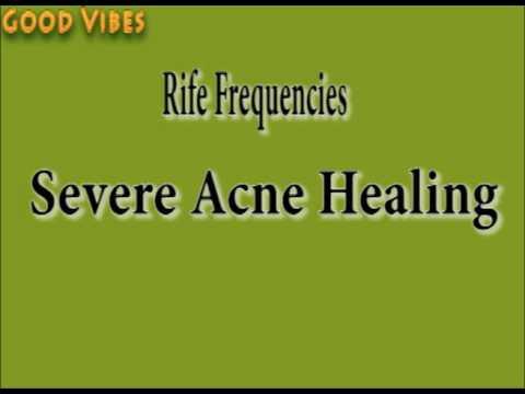 Severe Acne Healing Rife Frequencies Binaural Beats | Good Vibes