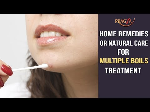 Home Remedies Or Natural Care For Multiple Boils Treatment