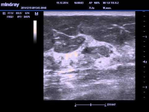 Киста молочной железы - причины, симптомы, диагностика и