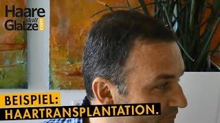Kurzes Haar: Ergebnis und Entnahmestelle einer Haartransplantation