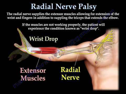 Radial Nerve Palsy, injury -  WRIST DROP . Everything You Need To Know - Dr. Nabil Ebraheim