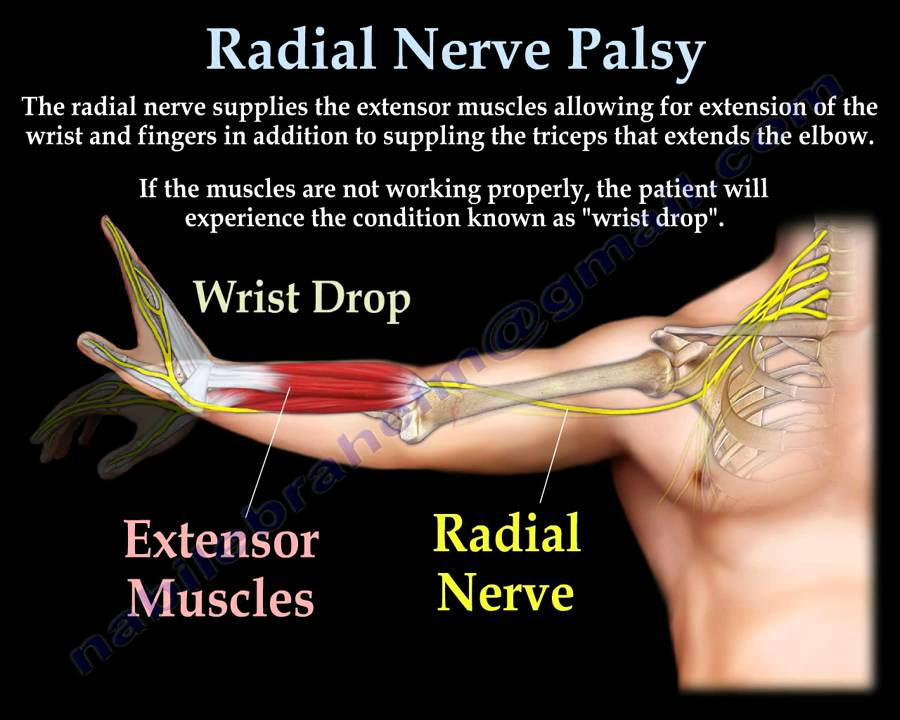 Radial Nerve Palsy, injury - WRIST DROP . Everything You ...