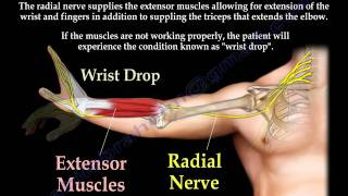 Radial Nerve Palsy, injury -  WRIST DROP...