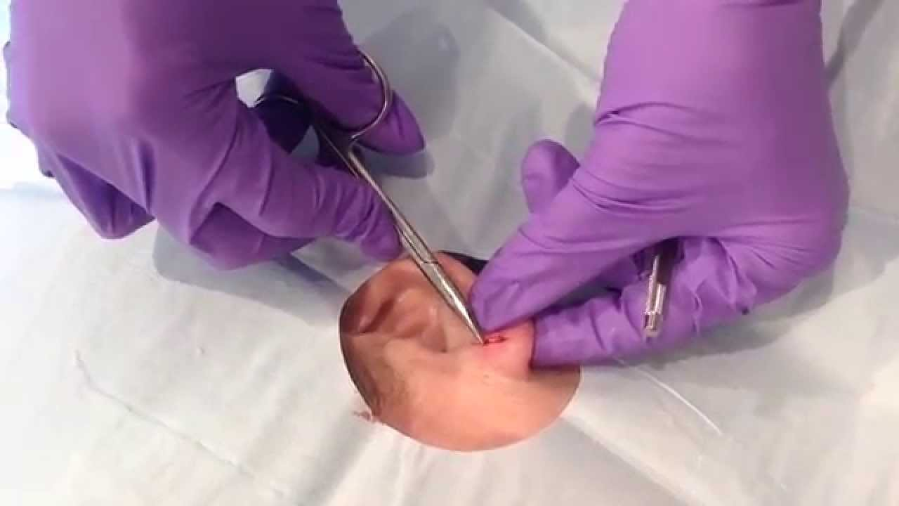 Cyst Excision Surgical Excision Of A Cyst On The Earlobe Youtube