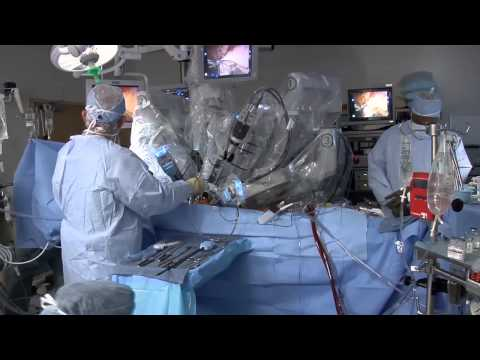 da Vinci Robot: Prostate Surgery, Kidney Surgery, and More