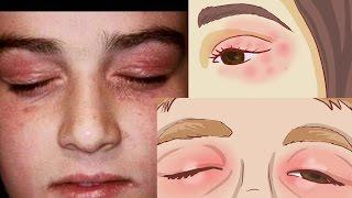 Alergias hinchados a casero ojos remedio los