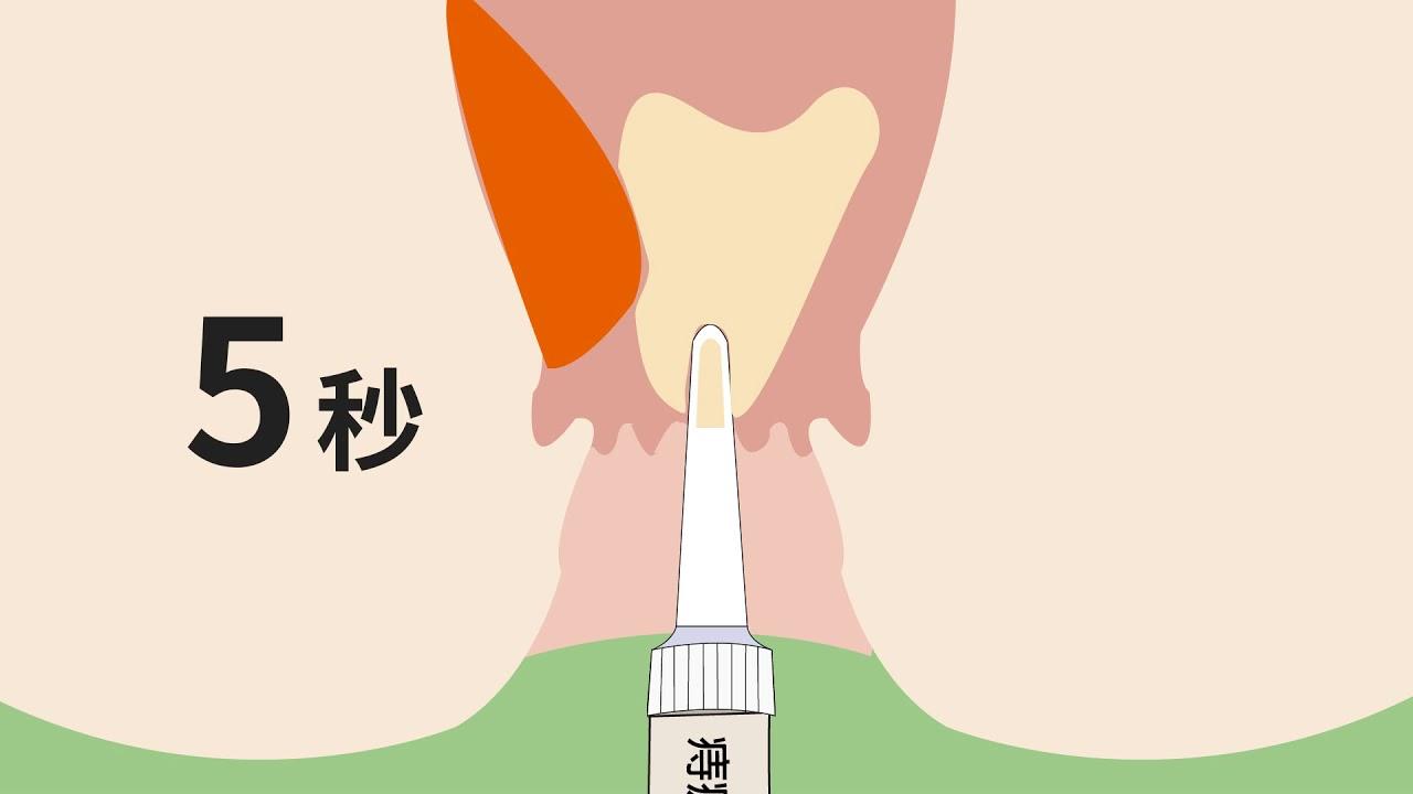 痔瘡軟膏用藥指導-(1)藥品使用 - YouTube