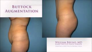 Brazilian Butt Lift Satisfaction Rate | Dr. William Bruno | Beverly Hills