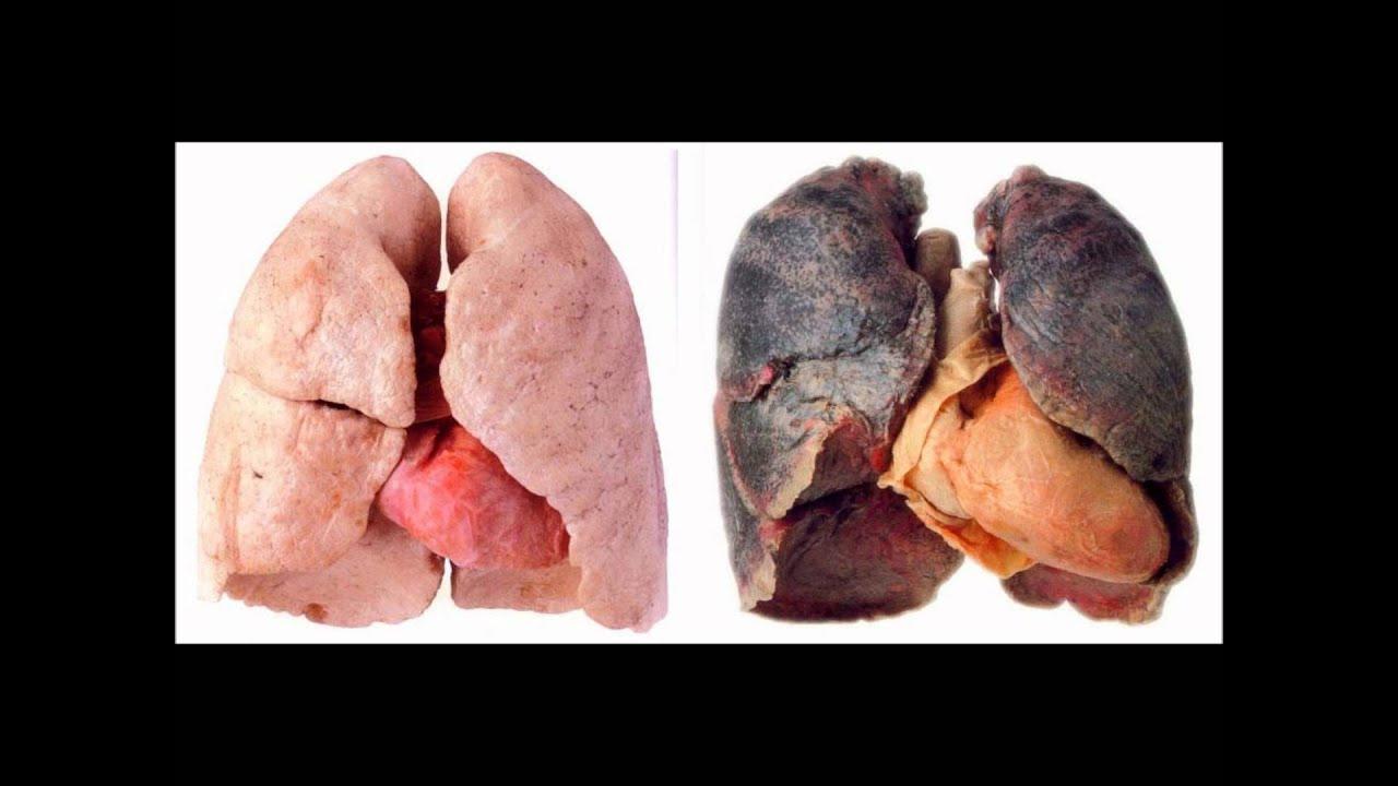Kids, Say NO To Smoking! - YouTube