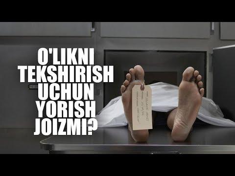 O'likni tekshirish uchun yorish joizmi? | Shayx Sodiq Samarqandiy