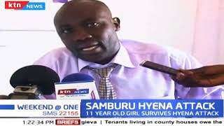 Samburu Hyena Attack: Girl sustain severe facial, scalp injuries after a brutal attack by Hyena