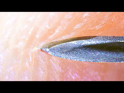 NEEDLE IN TO HUMAN SKIN - [under microscope]