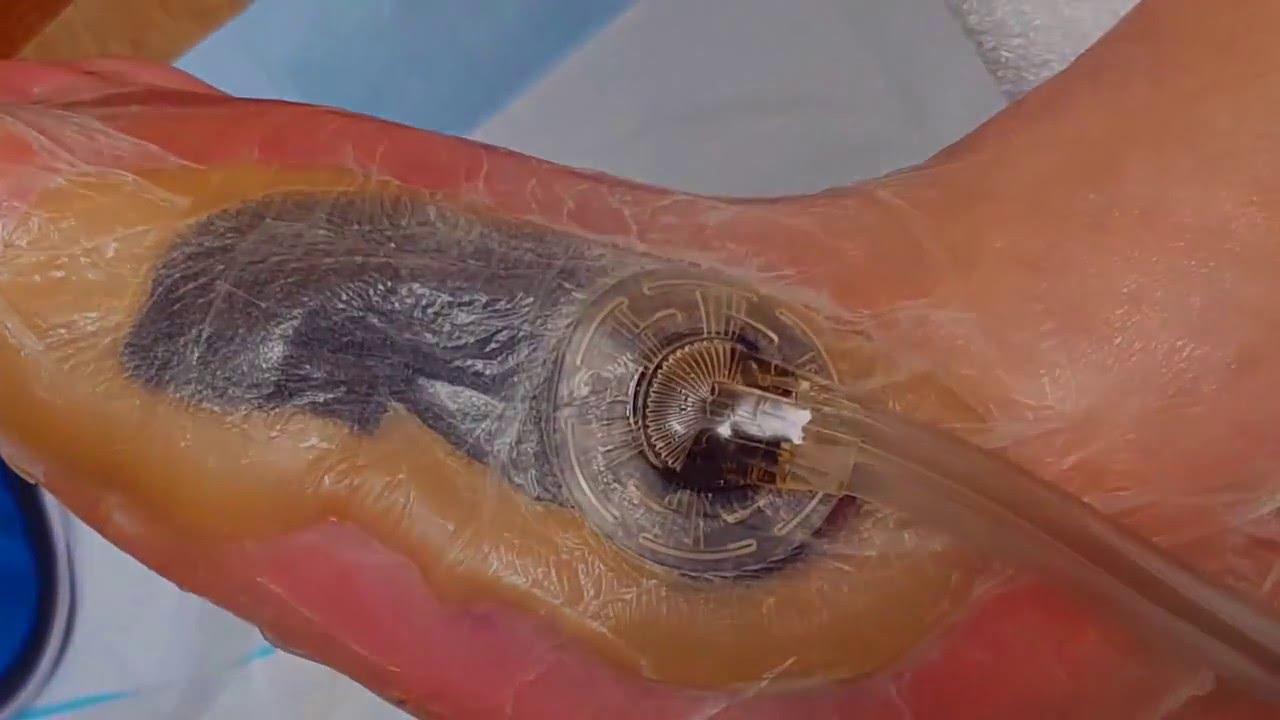 veraflo vac application diabetic foot wound youtube