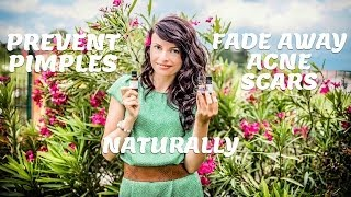 Prevent pimples&fade away acne scars naturally with essential oils & Beautilicious Delights Launch Thumbnail