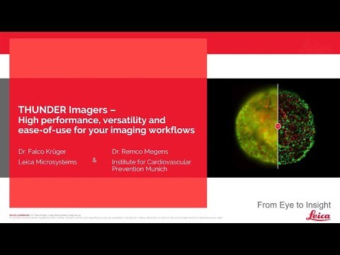 THUNDER Imagers Webinar: High performance, versatility and ease-of-use for your imaging workflows