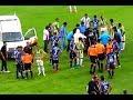 El dramático momento en el que un futbolista sufre fractura de cráneo por un codazo