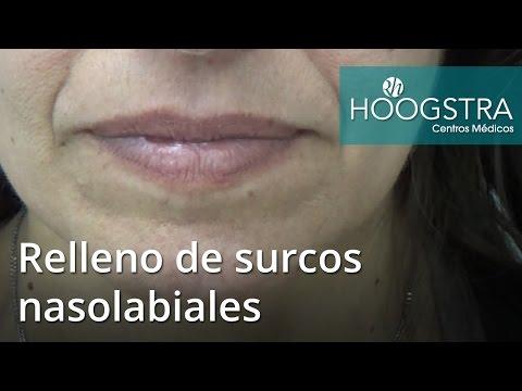 Relleno de surcos nasolabiales (16071)