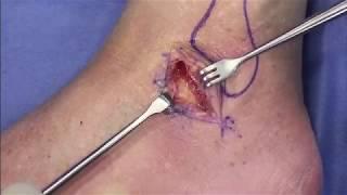 Não tornozelo cicatrizam do ligamentos