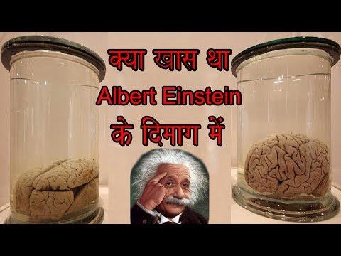 Albert Einstein's Brain (अल्बर्ट आइंस्टीन का दिमाग आज भी सुरक्षित क्या खास है उनके दिमाग मे)