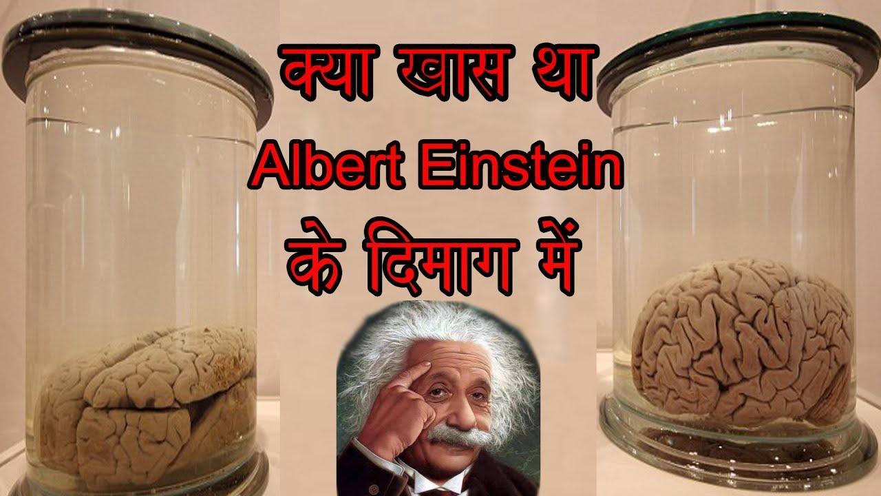Albert Einstein S Brain अल बर ट आइ स ट न क