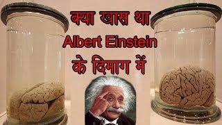 Albert Einstein s Brain
