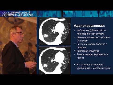 Тюрин И.Е.    Визуализация рака легкого