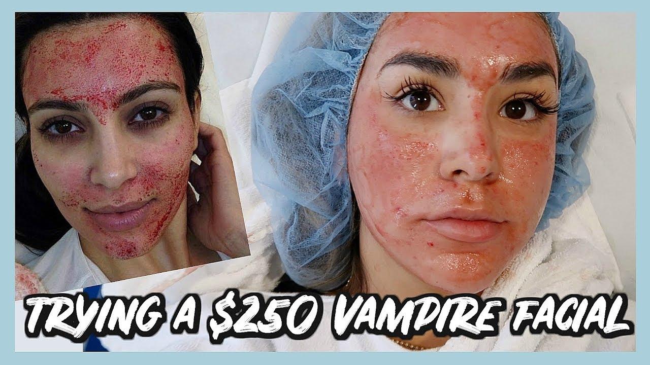 Trying The Kim Kardashian Vampire Facial Prp Treatment Youtube