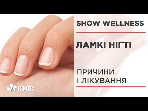 Ламкі нігті: причини і способи вирішення проблеми #ShowWellness